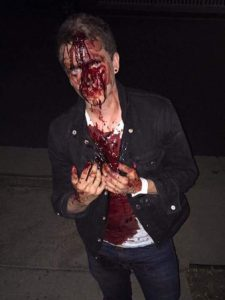 Chris Ball, a fim producer from Calgary, was attacked by men shouting homophobic slurs in Santa Monica on the night of the US election (Valerie Siu/Twitter) http://www.independent.co.uk/news/world/americas/us-elections/donald-trump-president-supporters-attack-muslims-hijab-hispanics-lgbt-hate-crime-wave-us-election-a7410166.html